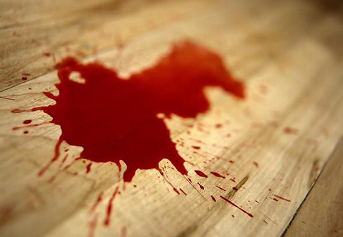 hemophobie-peur-sang